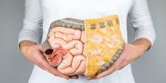 الفرق بين أعراض سرطان القولون والقولون العصبي وطرق العلاج