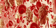 أسباب سرطان الدم وما هي الأعراض